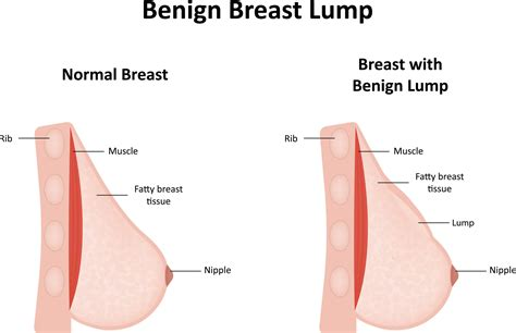 How a breast lump or a mammographic lesion is evaluated jpg 2545x1648