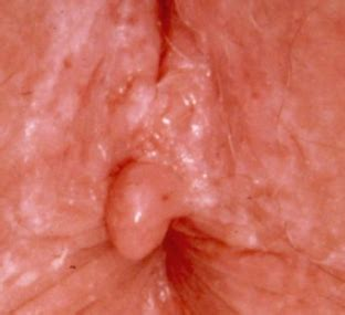 Vaginal skin tags causes, diagnosis, and how to remove them png 312x285